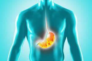 La malattia del reflusso gastroesofageo: dalla diagnosi alla terapia @ Bannia (PN) | Bannia | Friuli-Venezia Giulia | Italia
